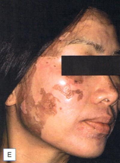 effet peeling visage