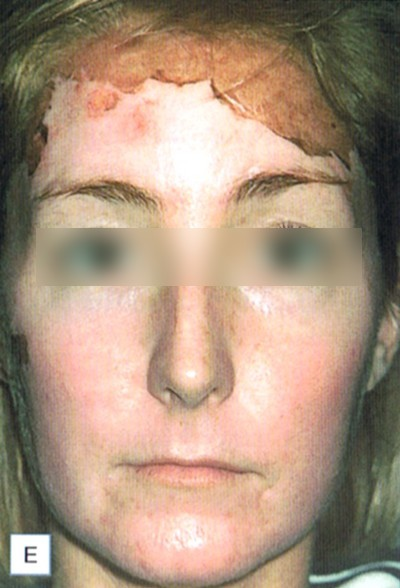 chemical peel and acne